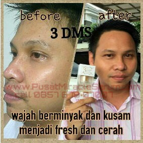 3-DAYS-MIRACLE-SERUM-SDS
