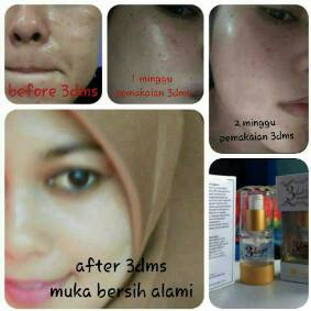 testimoni 3 days miracle serum lhoksemawe