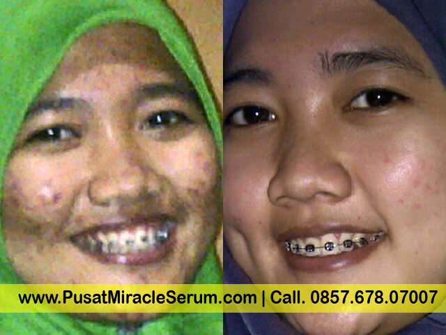 Serum 3Day Miracle
