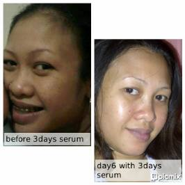 Serum 3Days Miracle Asli seperti ini