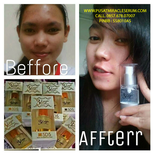 BPOM Serum 3 Days Miracle